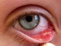 """Contact lens risk"""